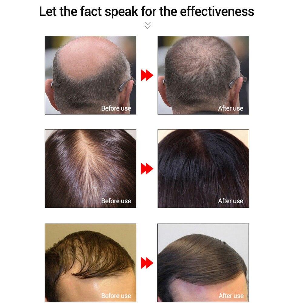 LANBENA Powerful Hair Growth Essential Oil Treatment Repair Hurt Hair Anti Hair Loss Hair Care Products TSLM1