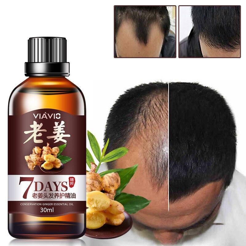 30ml Hair Loss Treatment Ginger Hair Care Fast Hair Growth Essence Oil for Men Women TSLM2
