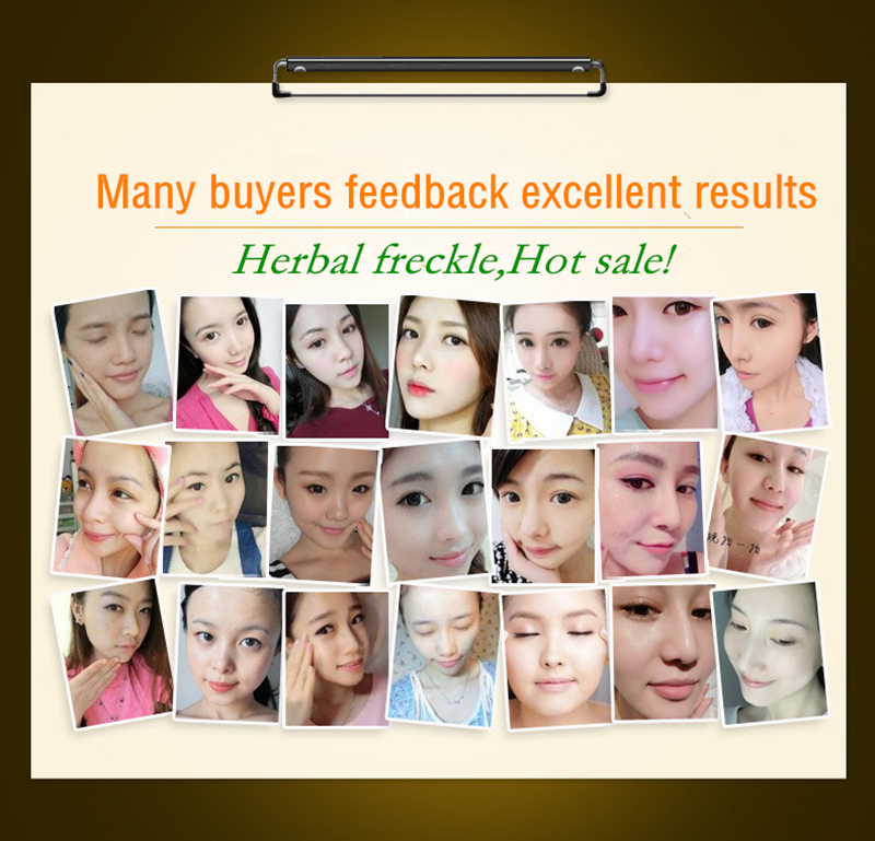2bags Pure herbal whitening freckle Soft Face Mask Powder Removal melasma Acne scar pigment Melanin Peel Off Rubber Facial Mask