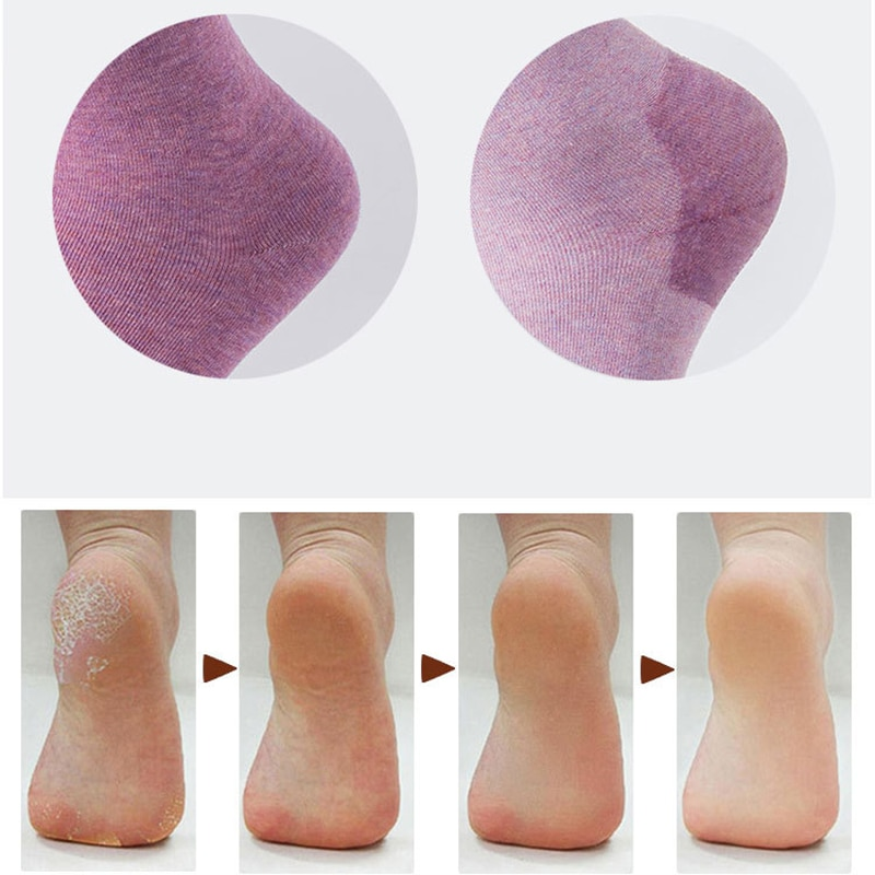 1 Pair of Silicone Moisturizing Gel Heel Socks Cracked Foot Dry Skin Care Protector Feet Care Tool Treatment Spa Sock