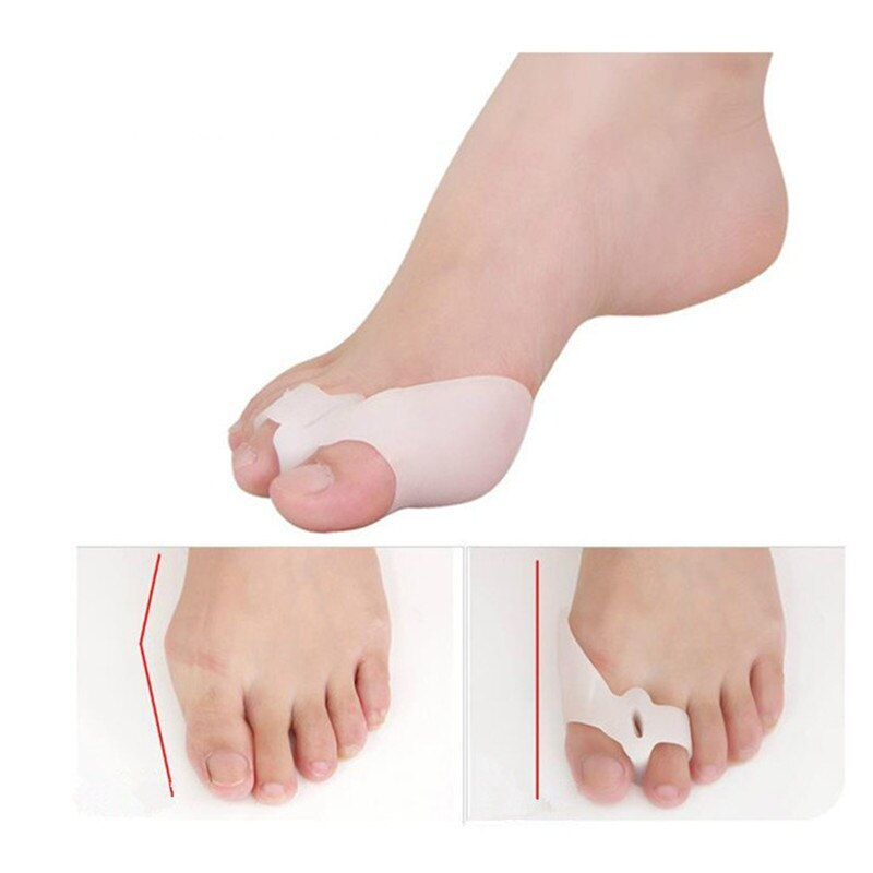 1pair Soft Silicone Toe Pads Bunion Corrector Toe Separators Straightener Spreader Hallux Valgus for Feet Care Pedicure Tools