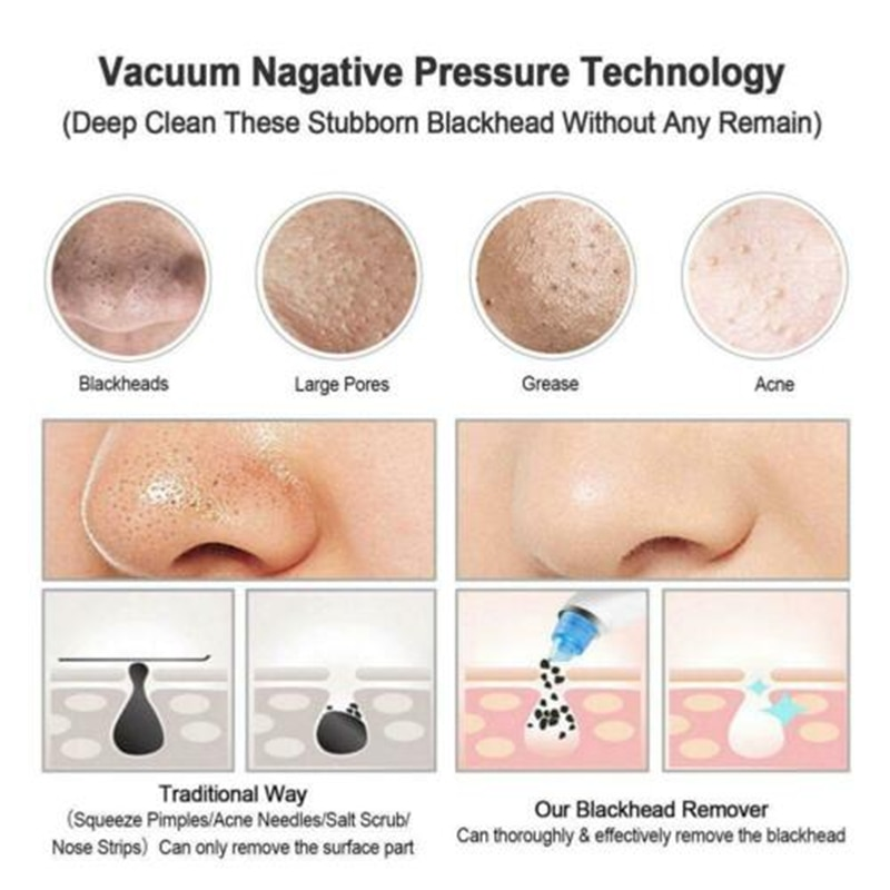 Blackhead Remover Skin Pore Deep Cleaner Cleansing Black Pore Acne Pimple Removal Vacuum Beauty Device Facial Clean Care Tool