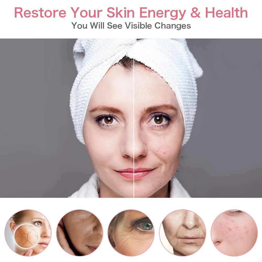 5 in 1 LED Radiofrequency Facial Skin Tightening Anti Aging Wrinkles Blackhead Reduce Skin Rejuvenation LED Light Beauty Device
