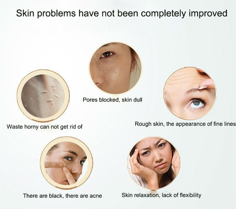 Microdermabrasion Diamond Dermabrasion Pen Vacuum Massage Skin Peeling Beauty Equipment Face Care Blackhead Removal Machine