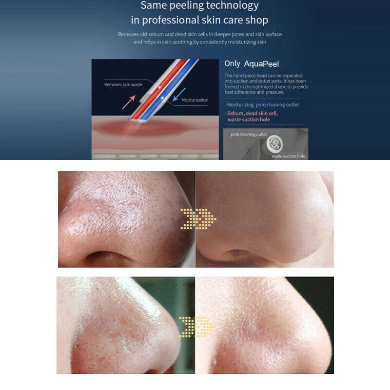 Hydra Dermabras oxygen jet peel clean machine Microdermabrasion Water Oxygen Therapy Facial Equipment Facial Skin Whitening