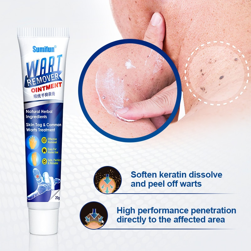 1pcs Warts Remover Antibacterial Ointment Wart Treatment Cream Skin Tag Remover Herbal Extract Foot Corn Plaster Warts Ointment