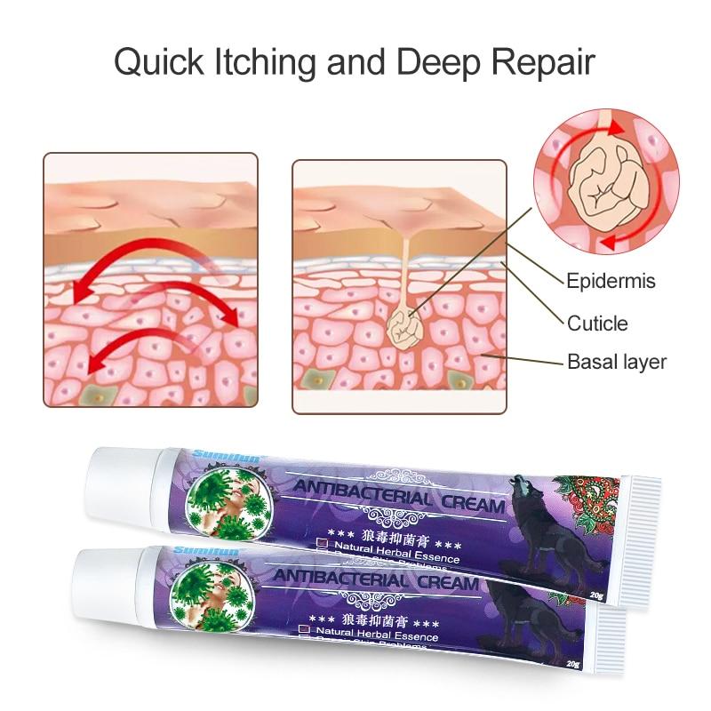 1pcs Sumifun Skin Care Cure Wolf Venom Antibacterial Cream Psoriasis Ointment Dermatitis Eczema Treatment Herbal Medical Plaster